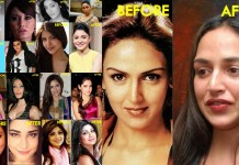 10 Bollywood Celebrities With Worst Plastic Surgeries