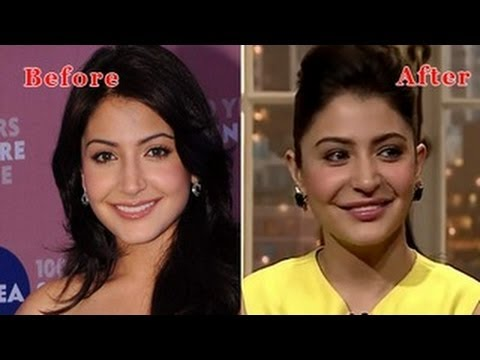 lip-surgery-anushka