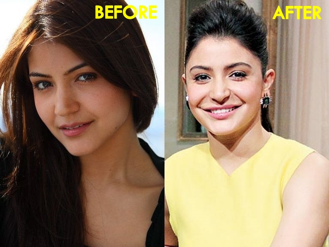 Anushka Sharma-Before & After