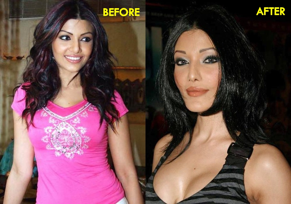 Koena Mitra- Before & After