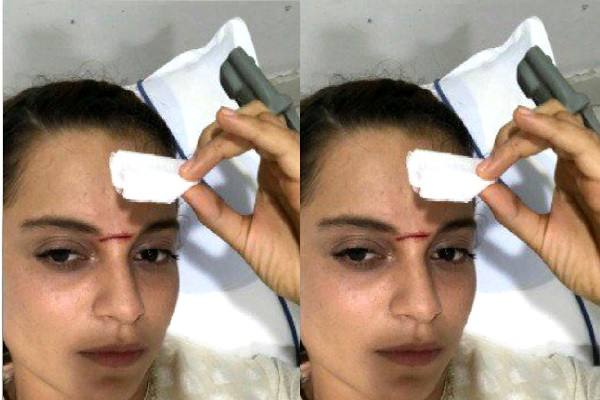 Kangana Ranaut gets hit by a sword on her forehead